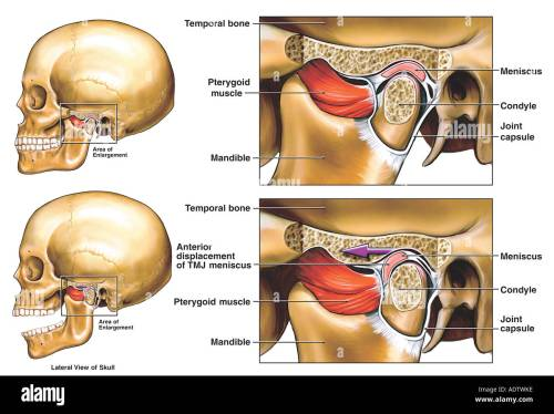small resolution of anterior displacement of the left temporomandibular joint tmj