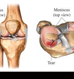 torn meniscus [ 1300 x 958 Pixel ]
