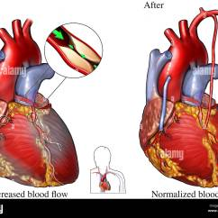 Diagram Of A Heart Bypass Graft Underfloor Heating Thermostat Wiring Coronary Artery Disease Surgery Stock Photo