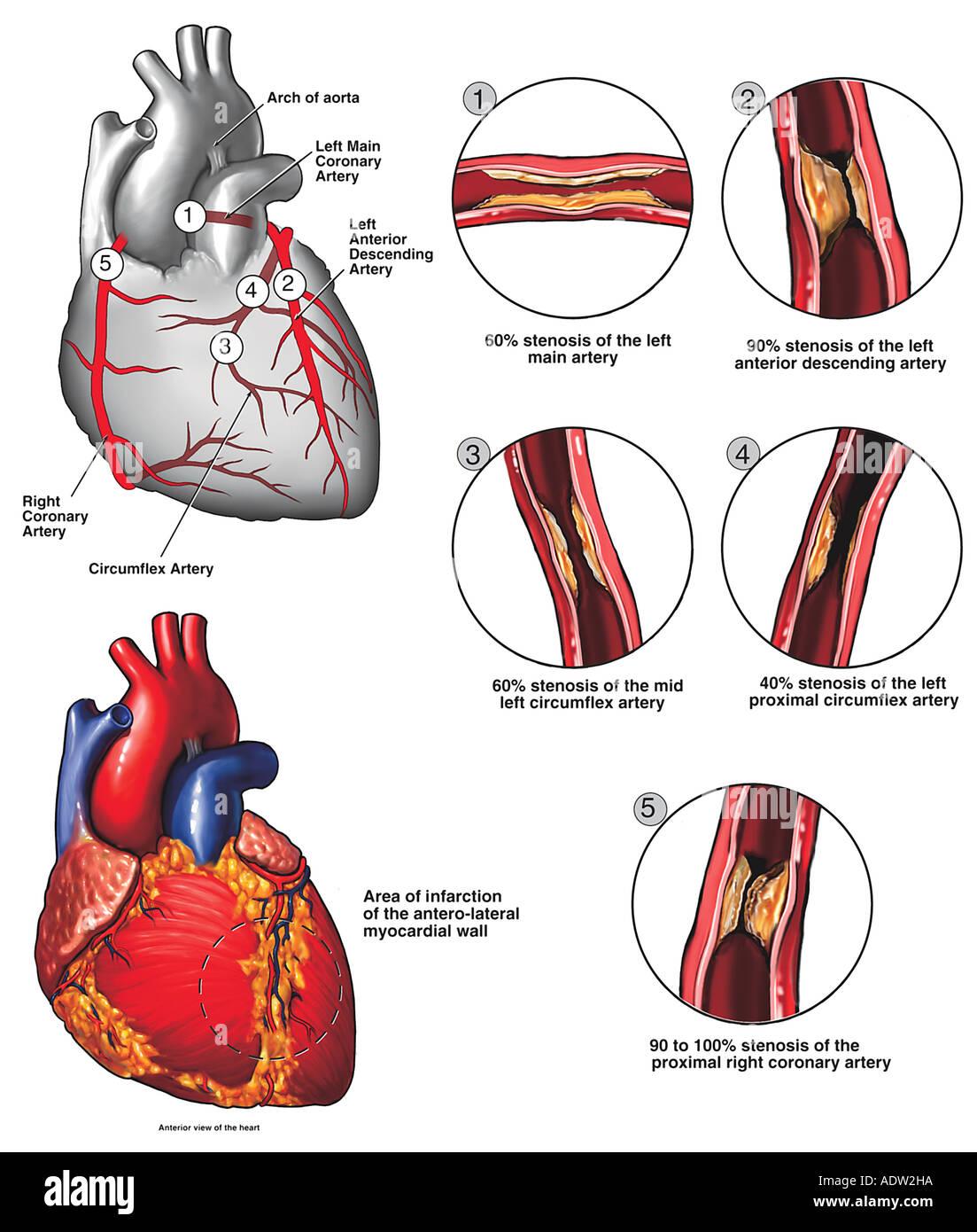 Atherosclerotic Coronary Artery Disease Stock Photo