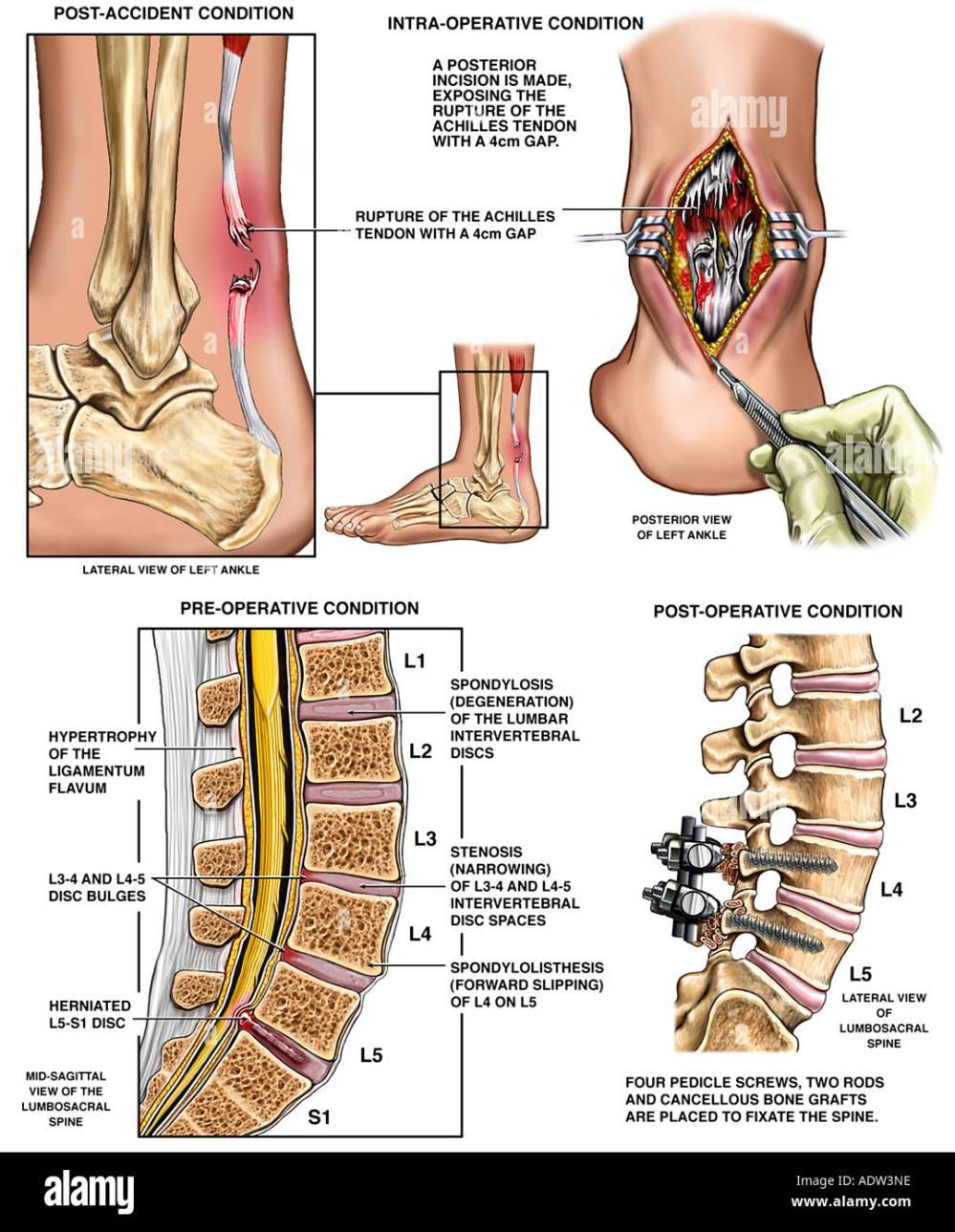 medium resolution of rupture of the achilles tendon and lower back injuries with surgical repairs