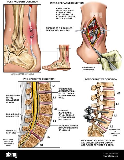small resolution of rupture of the achilles tendon and lower back injuries with surgical repairs