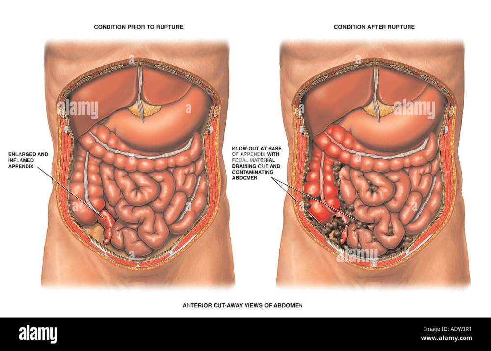 medium resolution of acute appendicitis with ruptured appendix stock image