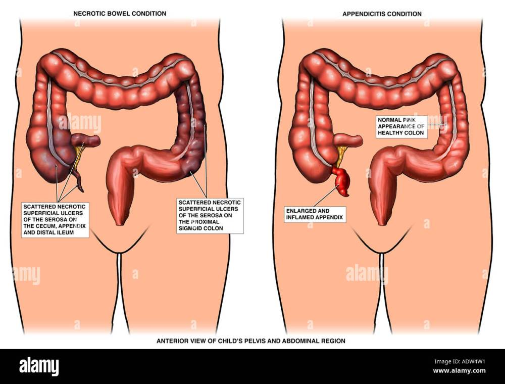 medium resolution of appendicitis inflamed appendix