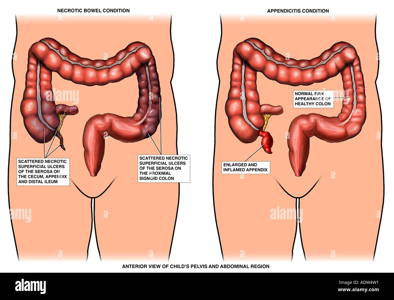 hight resolution of appendicitis inflamed appendix