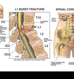 l1 compression burst fracture with spinal cord injury stock image [ 1300 x 930 Pixel ]