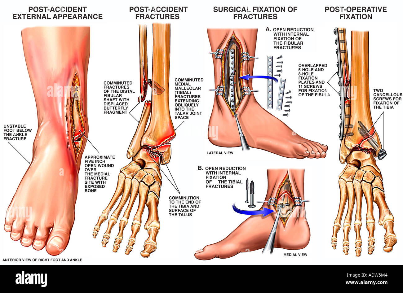 hight resolution of open fracture dislocation of the right ankle