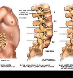 low back pain management lumbar facet joint nerve block [ 1300 x 934 Pixel ]
