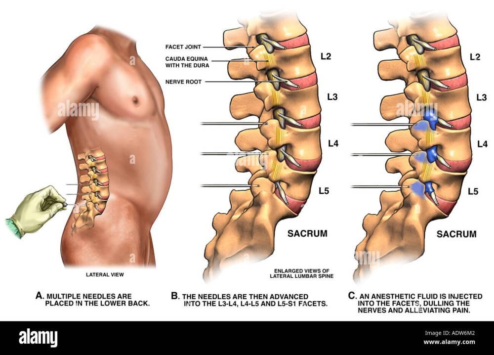 medium resolution of low back pain management lumbar facet joint nerve block