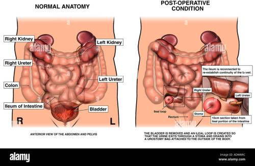 small resolution of large intestine and bladder stock photos large intestine and diagram of colon and bladder