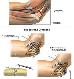 ulnar nerve injury with surgical repair stock image [ 1044 x 1390 Pixel ]