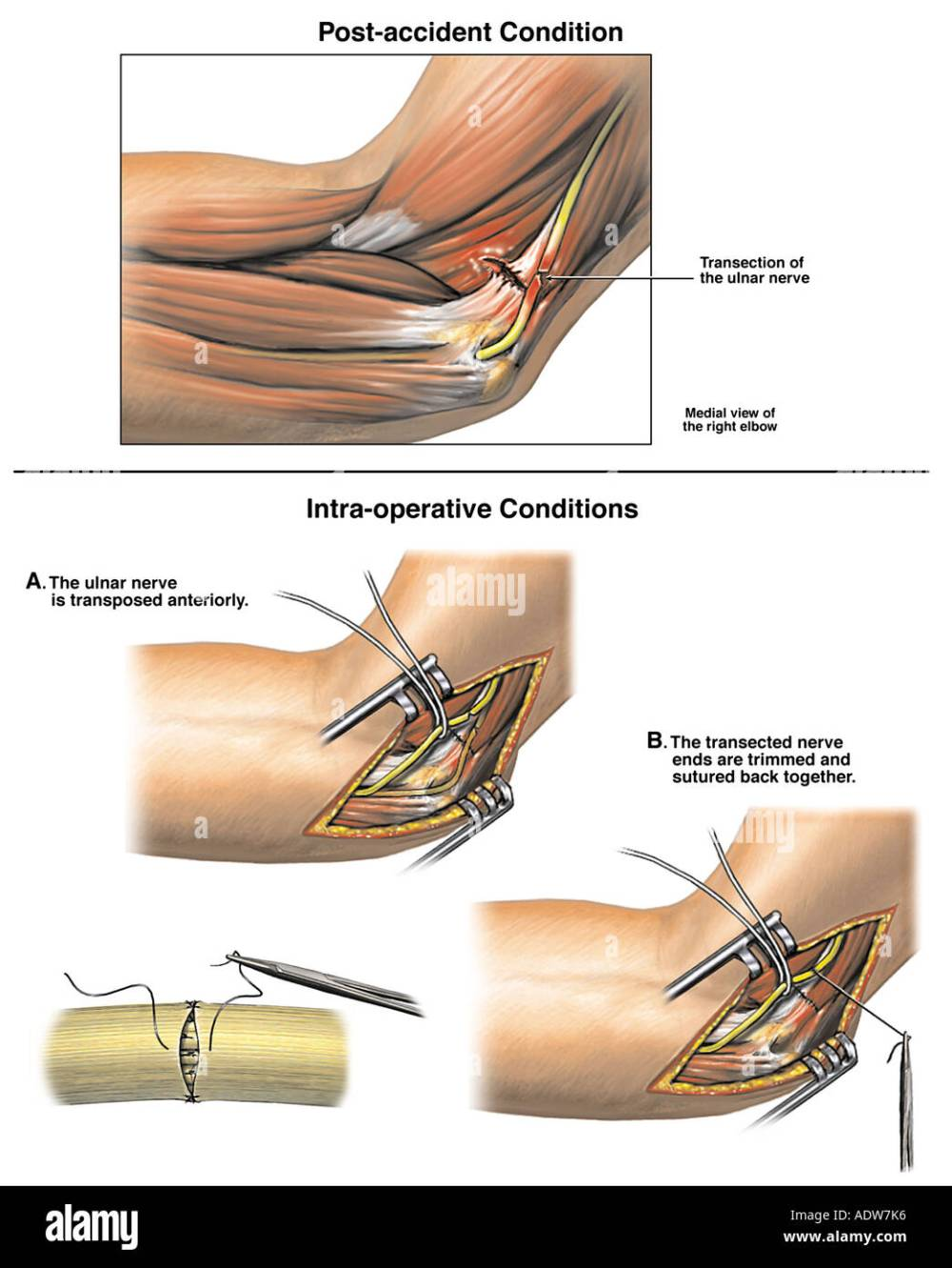 medium resolution of ulnar nerve injury with surgical repair stock image