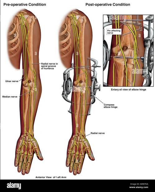small resolution of left elbow diagram wiring diagram detailed left foot diagram elbow surgery placement of external fixator on