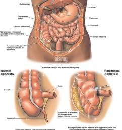 gangrenous appendix appendicitis with perforation and abscess formation stock image [ 1063 x 1390 Pixel ]