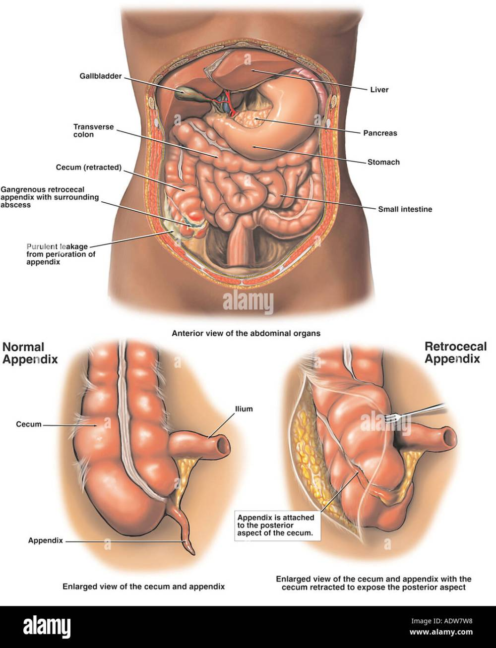 medium resolution of gangrenous appendix appendicitis with perforation and abscess formation stock image