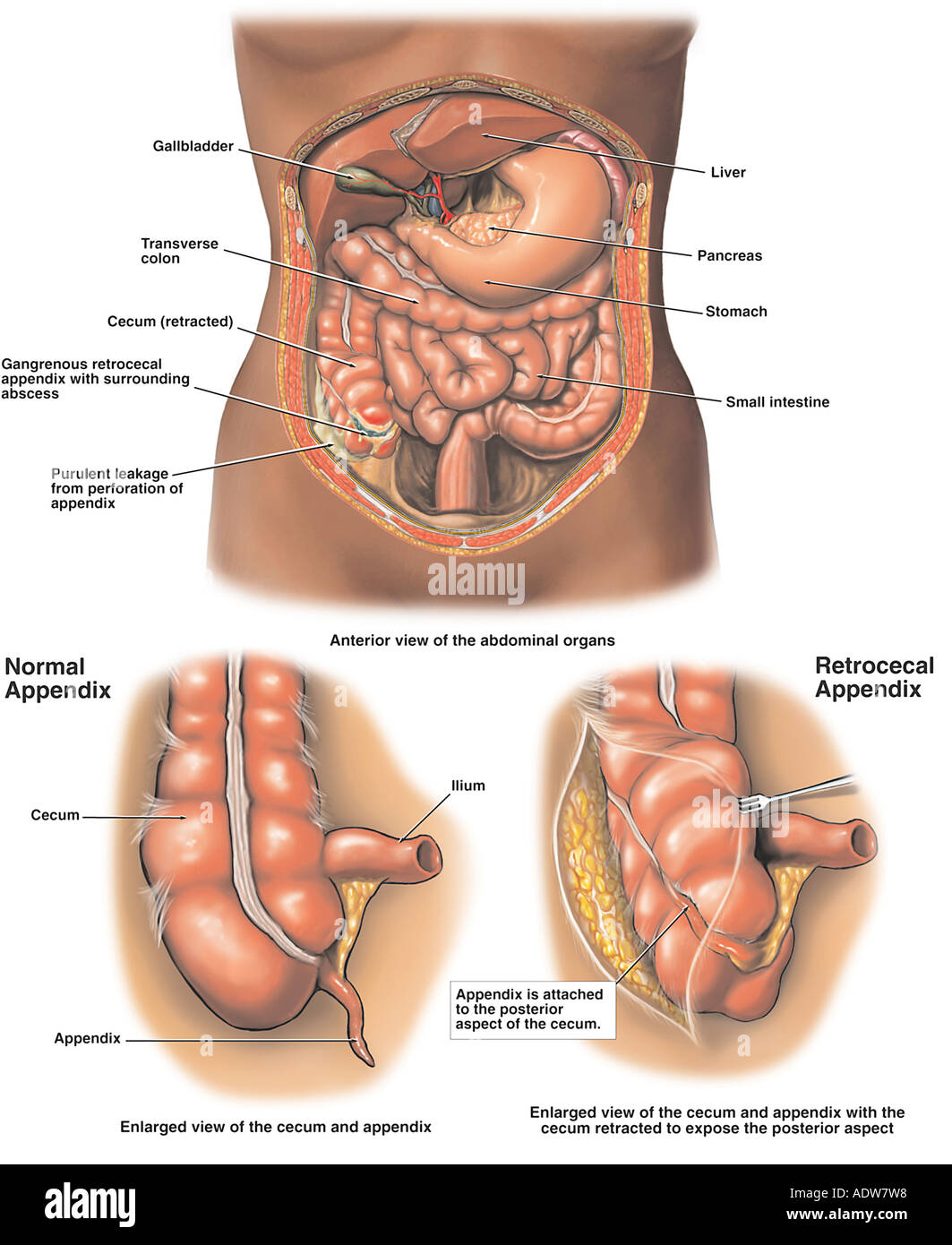 hight resolution of gangrenous appendix appendicitis with perforation and abscess formation stock image