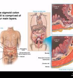 normal sigmoid colon wall vs sigmoid bowel diverticulum stock image [ 1300 x 1042 Pixel ]