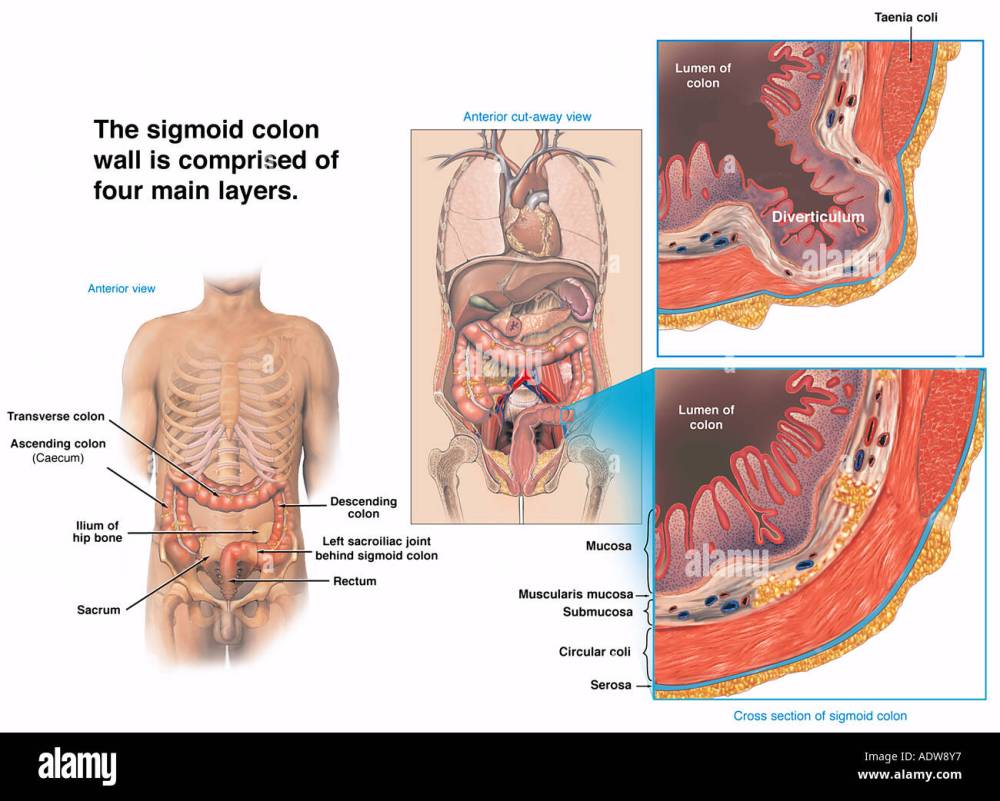 medium resolution of normal sigmoid colon wall vs sigmoid bowel diverticulum stock image