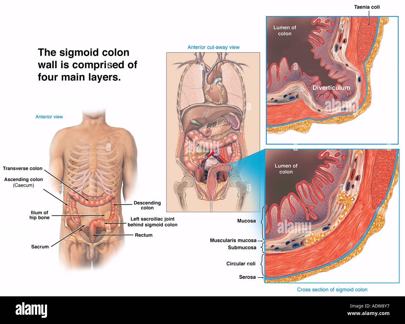 hight resolution of normal sigmoid colon wall vs sigmoid bowel diverticulum stock image