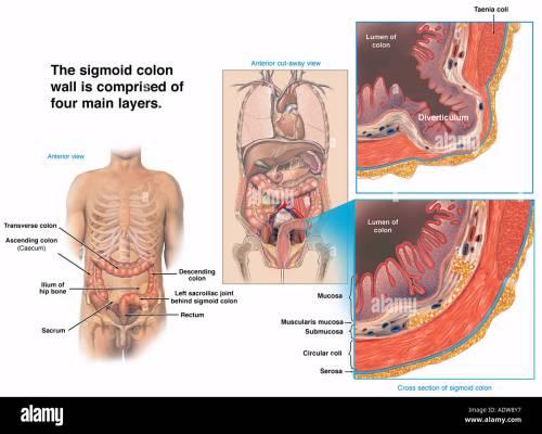 small resolution of normal sigmoid colon wall vs sigmoid bowel diverticulum stock image
