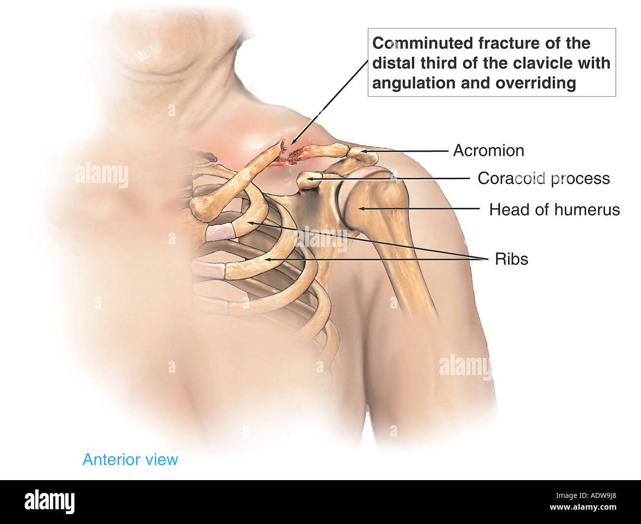 hight resolution of shoulder injury displaced clavicle fracture broken collar bone