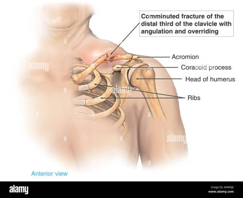 small resolution of shoulder injury displaced clavicle fracture broken collar bone
