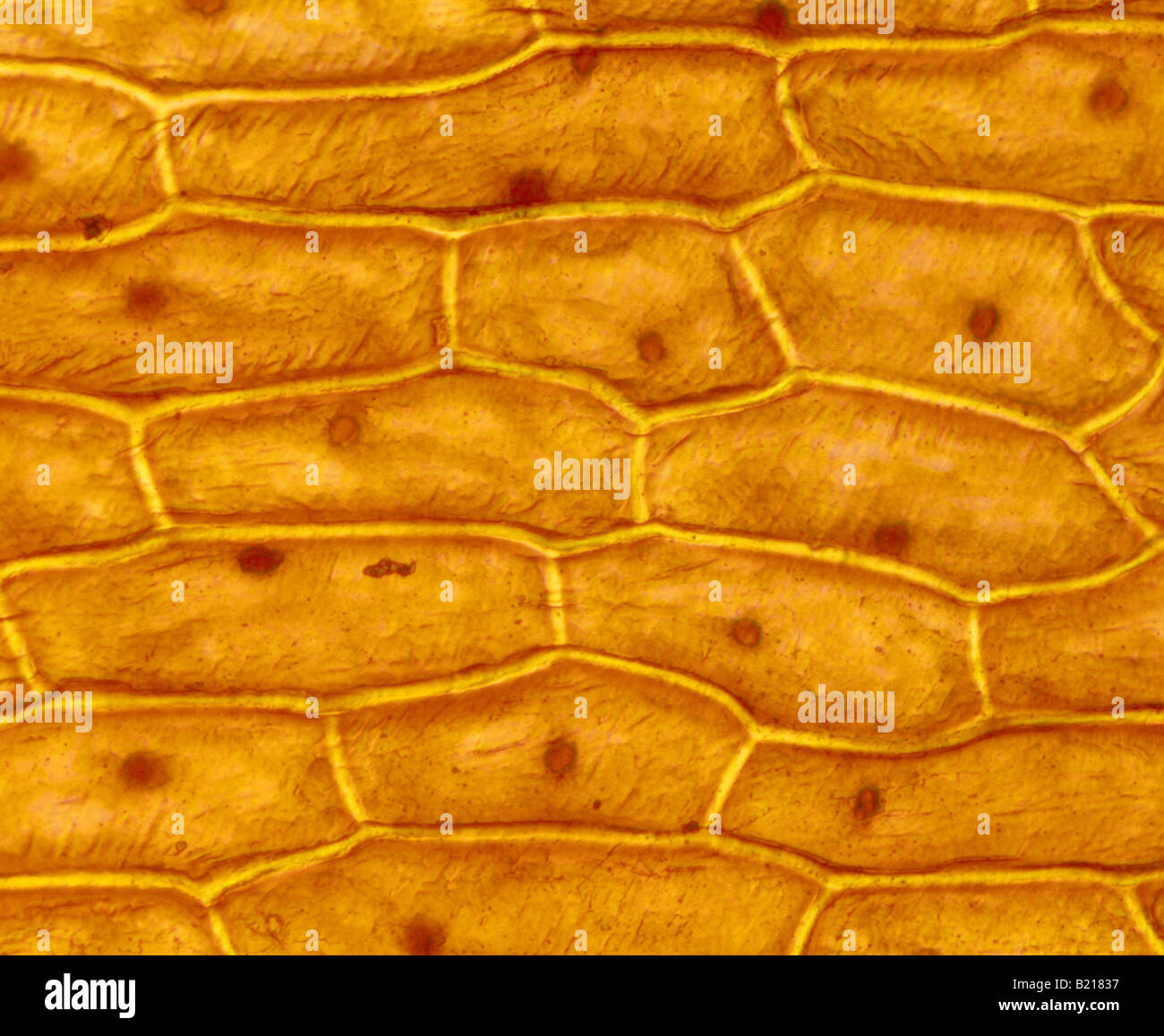 hight resolution of onion skin cells epidermal cells shows cell structure and nucleus stained in iodine live 100x studio