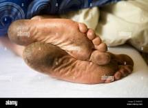 Dirty Feet Close- Stock 23608950 - Alamy
