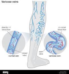diagram illustrating varicose veins stock image [ 1276 x 1390 Pixel ]