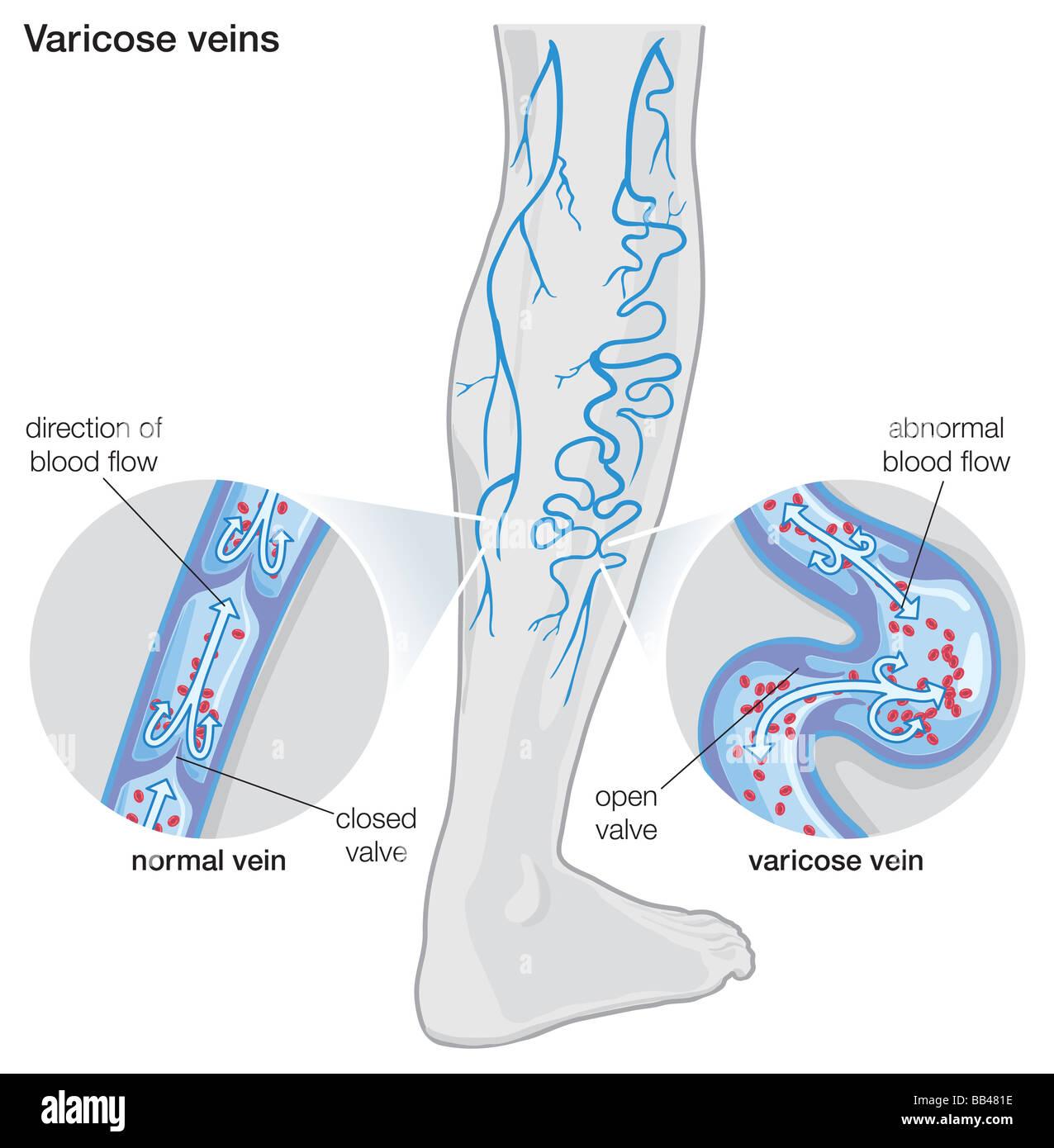 hight resolution of diagram illustrating varicose veins stock image