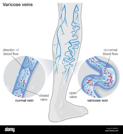 small resolution of diagram illustrating varicose veins stock image