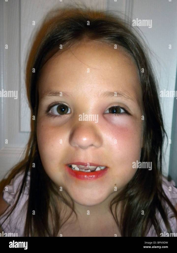 An Eight Year Old Girl Who Was Stung Near Her Left Eye By A Wasp