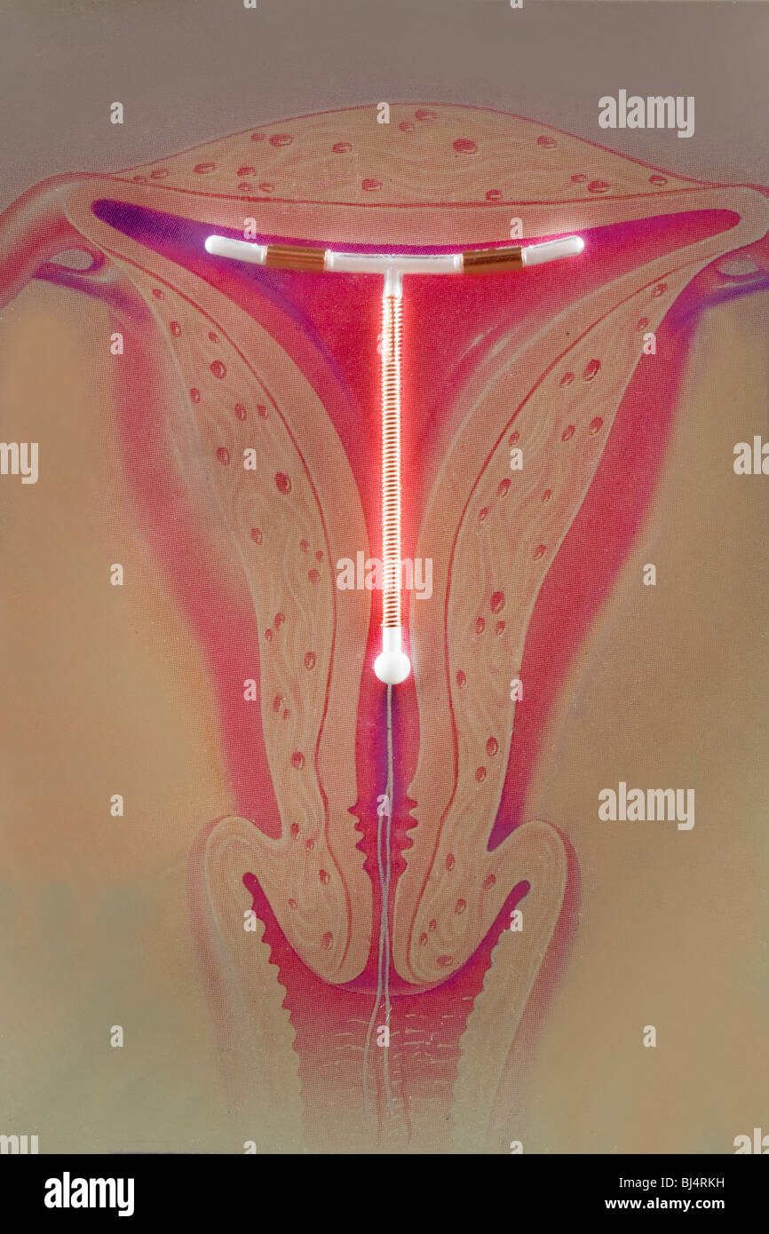 hight resolution of the paragard t 380a shown against a uterus illustration is a copper containing intrauterine device wound with copper wire