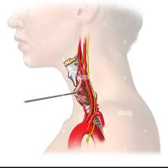 Vagus Nerve Diagram 1990 Winnebago Chieftain Wiring Diagrams Stock Photos Images Alamy The Thyroid Gland Is Retracted To Reveal Recurrent Which A Branch Of