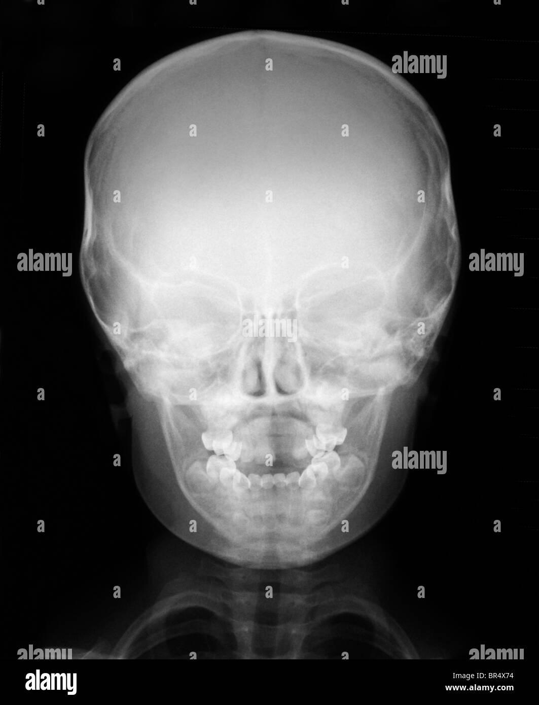 Normal Skull X Ray Stock Photos Amp Normal Skull X Ray Stock