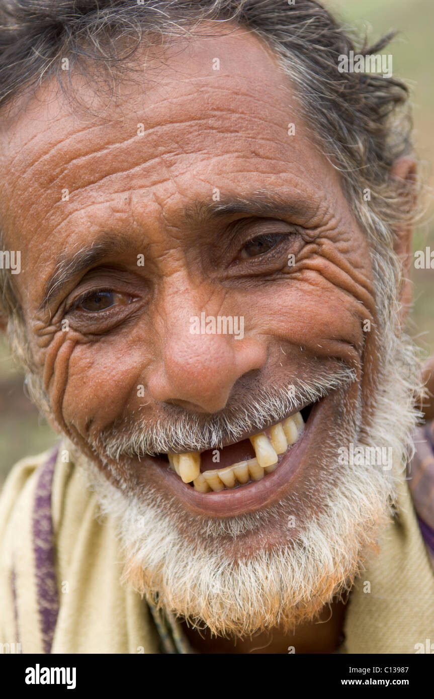 Old Man With No Teeth Smiling : teeth, smiling, Missing, Teeth, Resolution, Stock, Photography, Images, Alamy