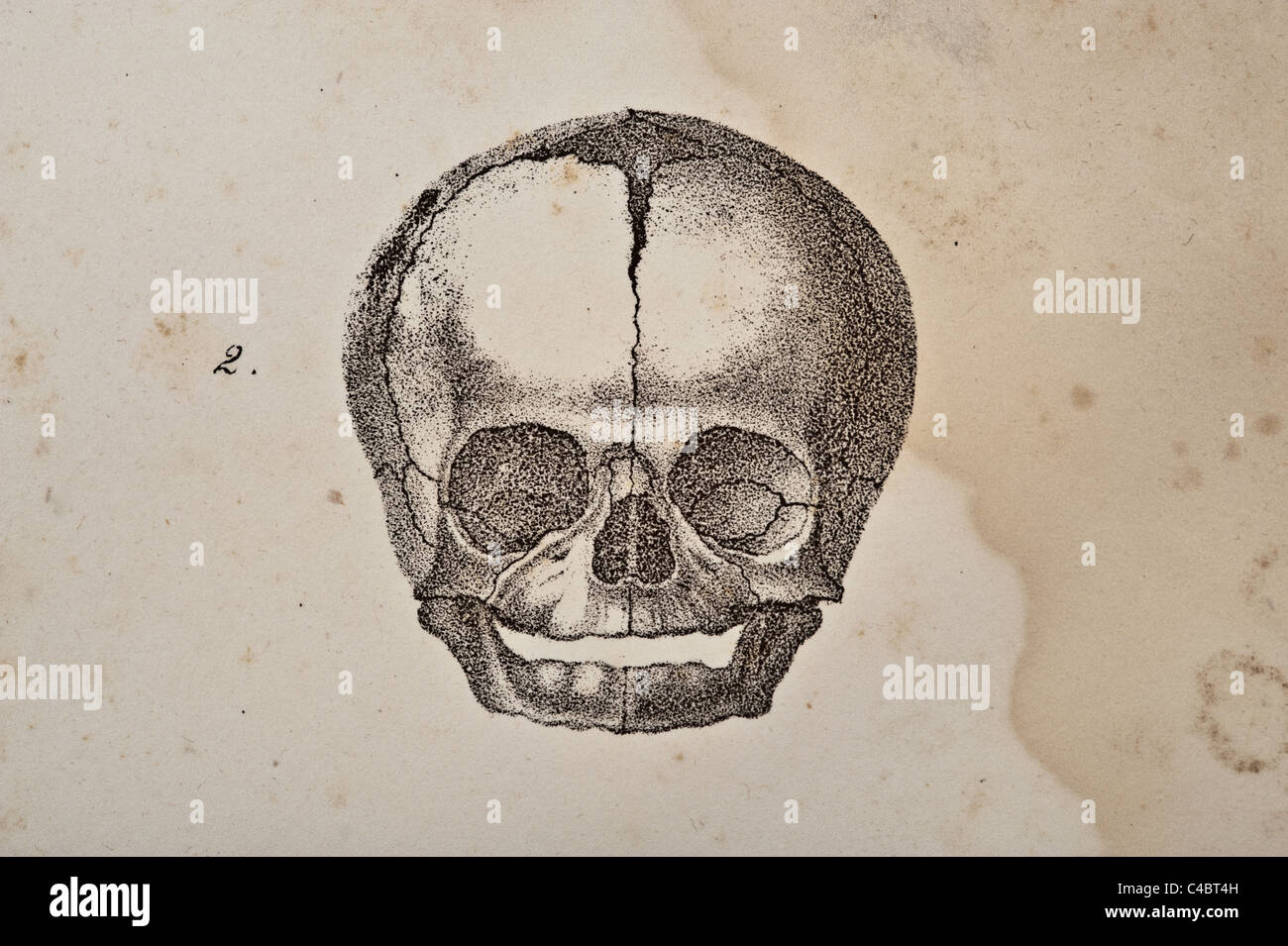 hight resolution of a skull illustration of fetus circa 1844 stock image