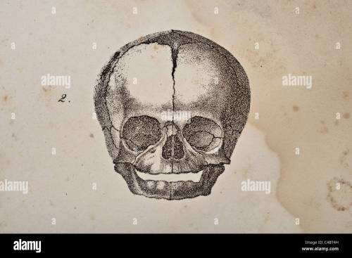 small resolution of a skull illustration of fetus circa 1844 stock image