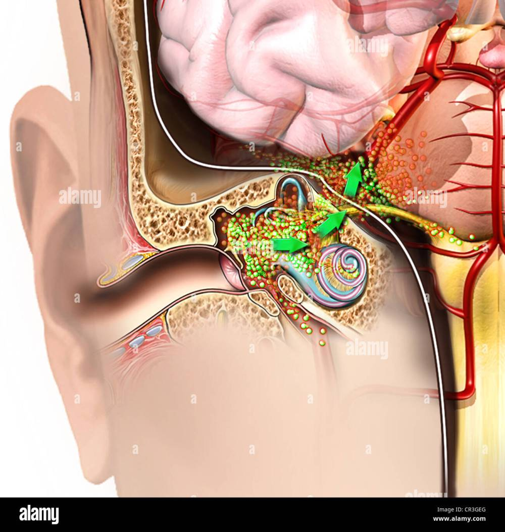 medium resolution of detail of right ear and brain anatomy with spread of bacterial meningitis
