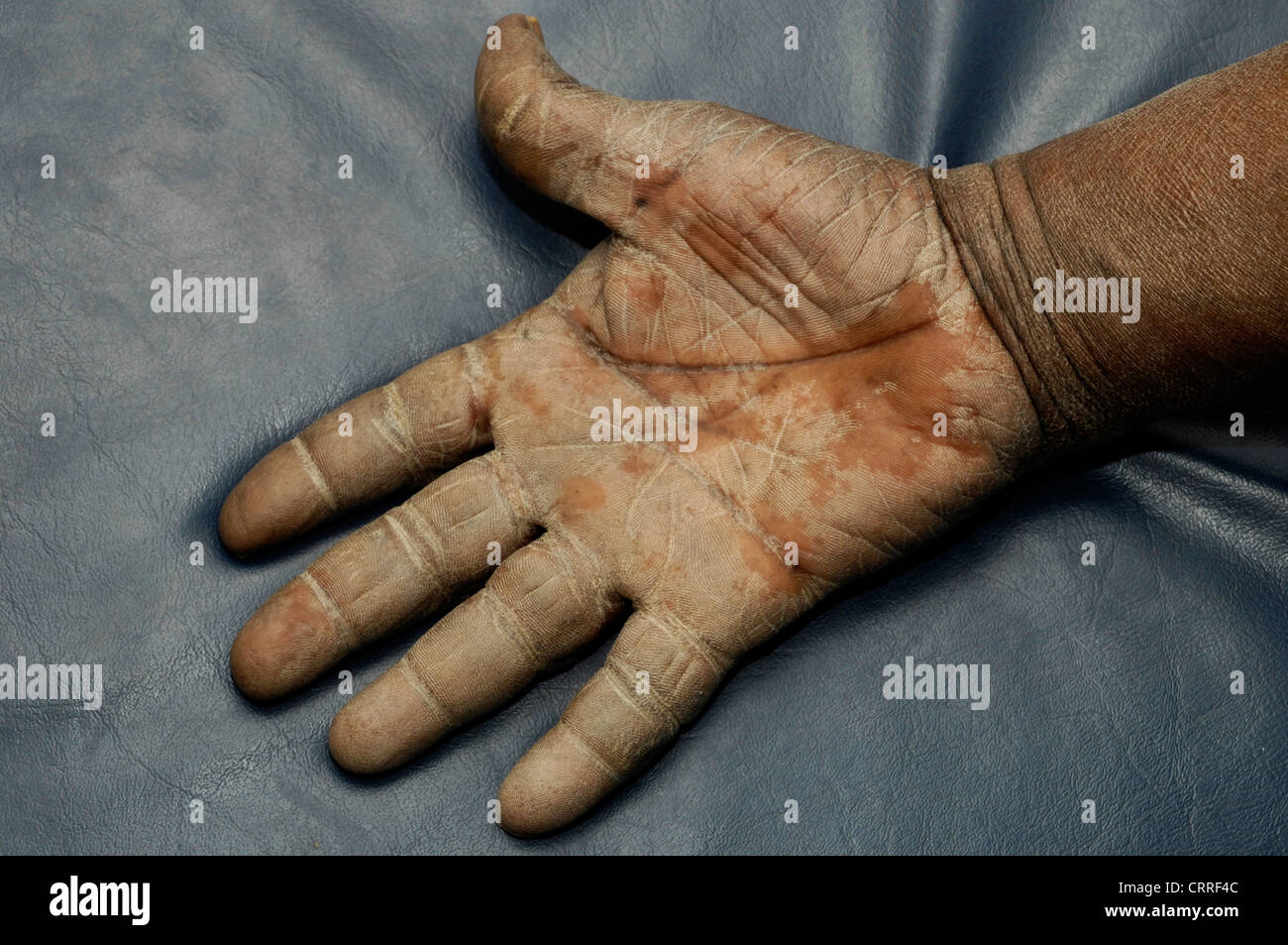 A patient with ichthyosis vulgaris affecting his hand ...