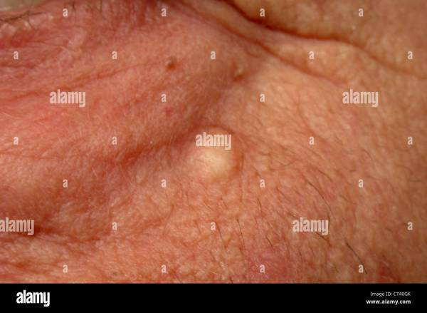 20+ Sebaceous Cyst Pictures and Ideas on STEM Education Caucus