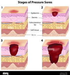 stages of pressure sores stock photo 49341605 alamy pressure ulcer location diagram pressure ulcer location diagram [ 1271 x 1390 Pixel ]