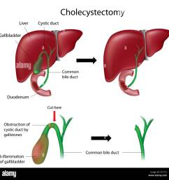 cholecystectomy gallbladder removal surgery stock photo gallbladder stones gallbladder in human body diagram [ 1300 x 1311 Pixel ]