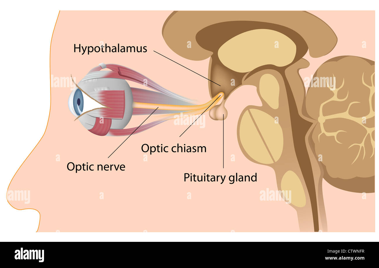 hight resolution of pituitary gland position relatively to optic nerves and optic chiasm stock image