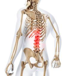 lower back pain conceptual artwork [ 974 x 1390 Pixel ]