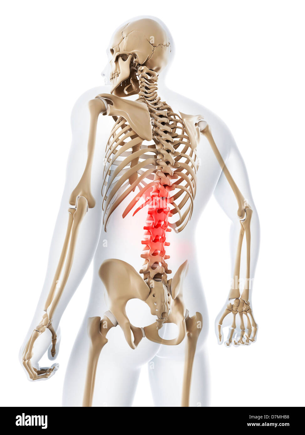 hight resolution of lower back pain conceptual artwork