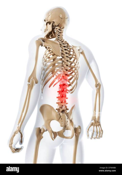 small resolution of lower back pain conceptual artwork