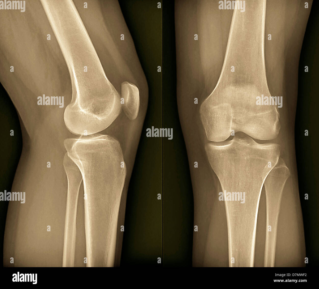 Normal Knee X Ray Stock Photos Amp Normal Knee X Ray Stock