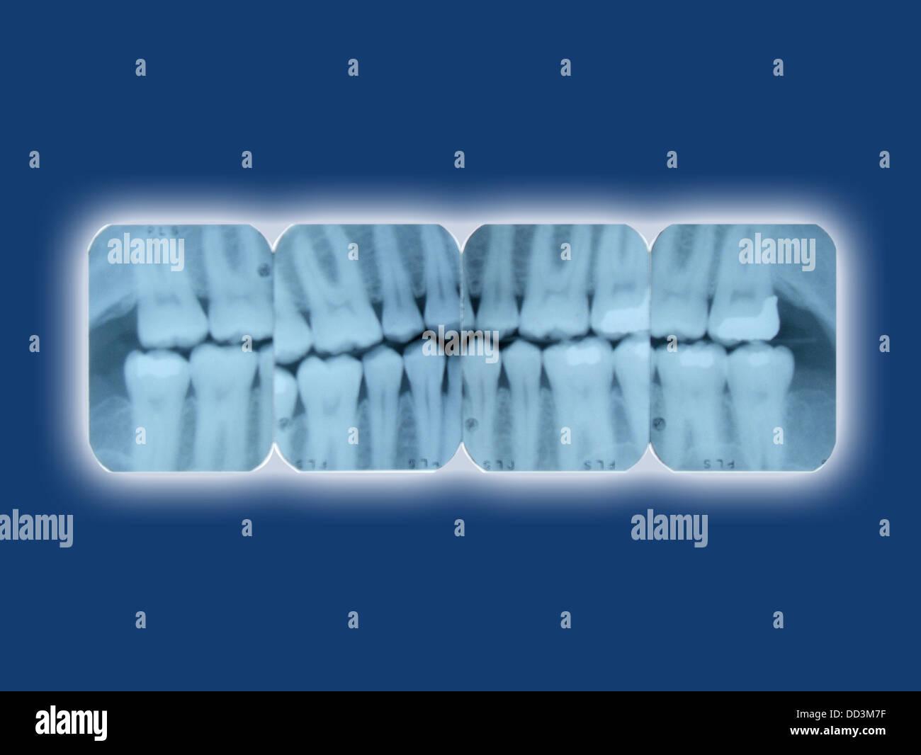 Dental Stock Photos Amp Dental Stock Images