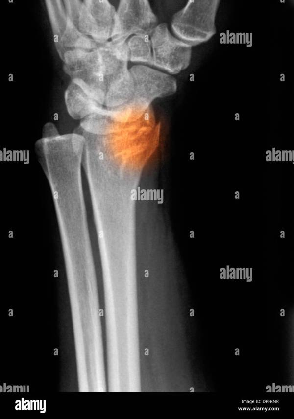 20+ Trapezium Bone Fracture Pictures and Ideas on Weric